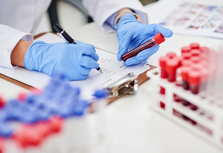 photo of a lab worker holding a blood sample
